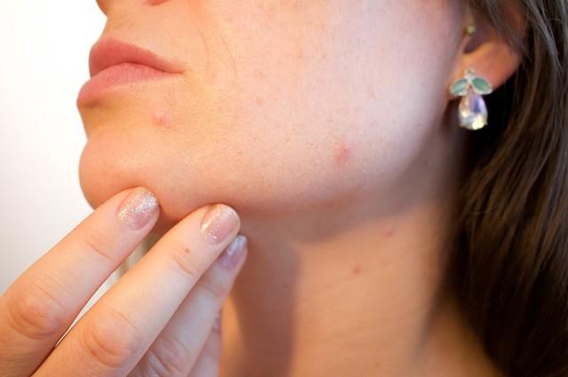 jak se zbavit akné